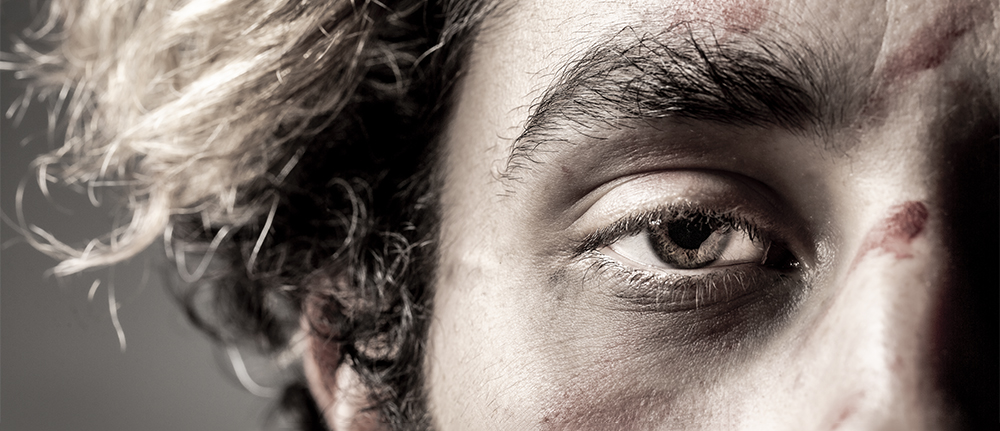 A close-up of the corner of a man's face, his eye staring out. There is blood on his face.